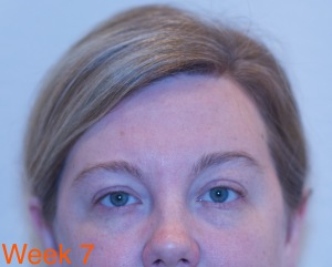 Clarisonic Opal Week 7 -eyes